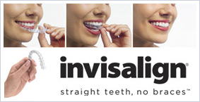 Seattle Orthodontics, Seattle Invisalign Braces