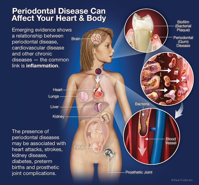 Dr Okamura - Periodontal Disease Affects On Body