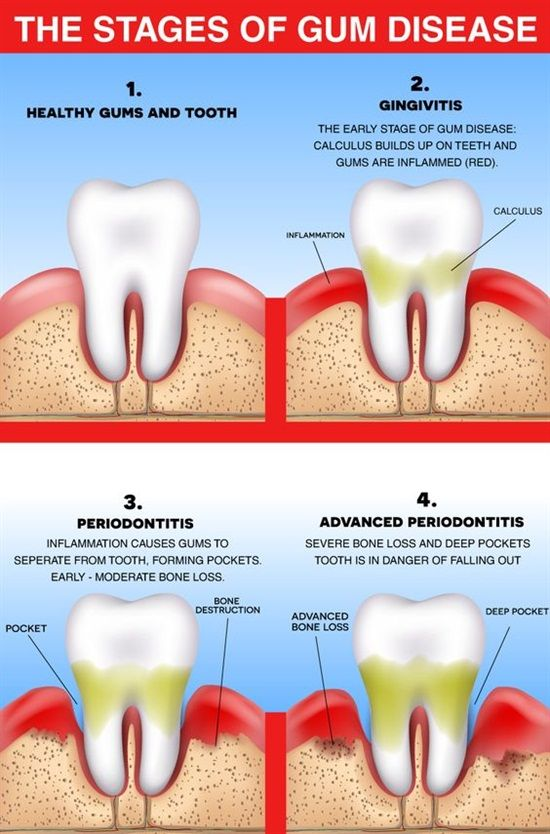 How To Keep Gums Healthy With Oral Care Kim Okamura Dds