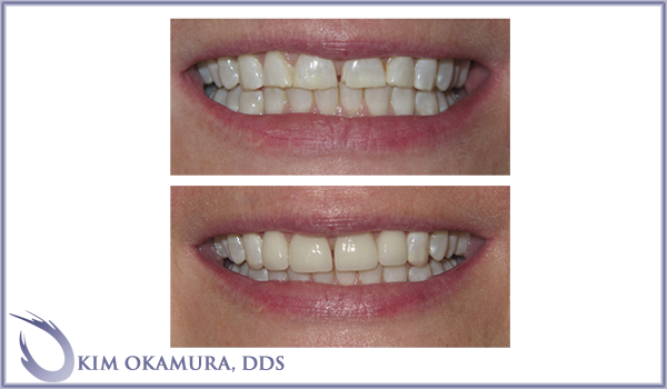 before and after Seattle cosmetic dentistry