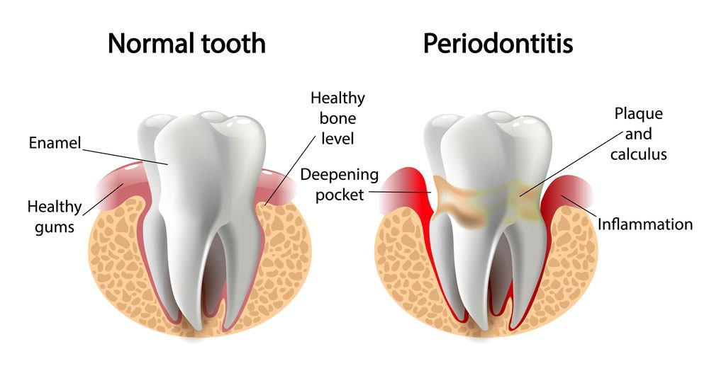 dr-okamura-normal-tooth-periodontal-tooth