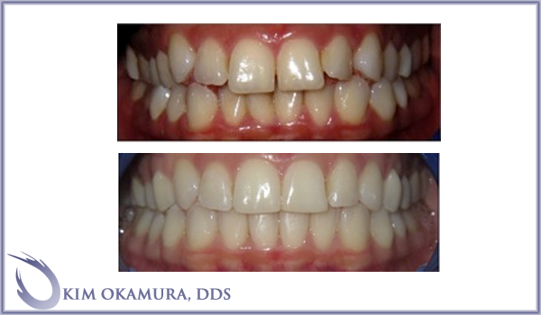 patient before and after images for Seattle Invisalign treatment with Kim Okamura