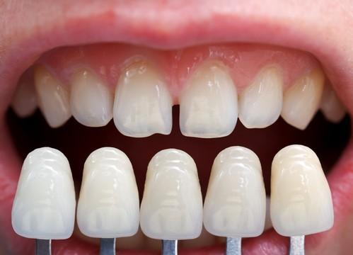Are Veneers Safe for Your Teeth? | Kim Okamura DDS