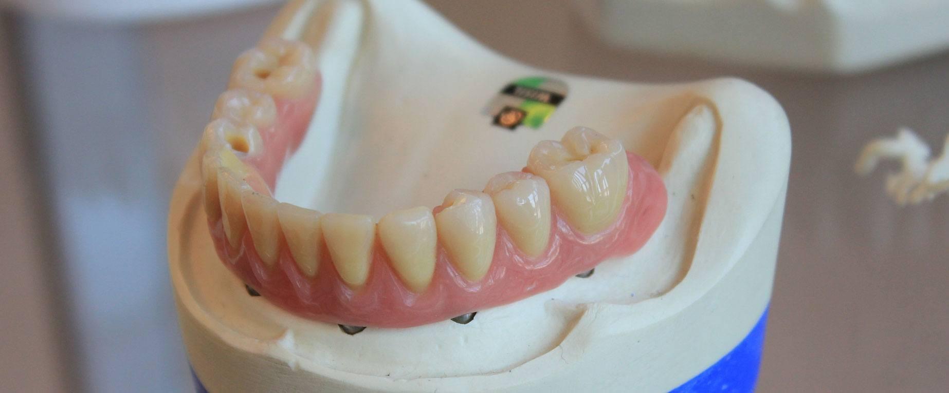 newest-dental-crowns