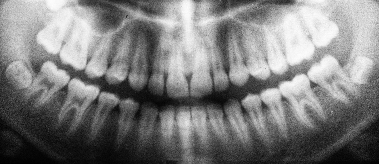 dental -x-ray