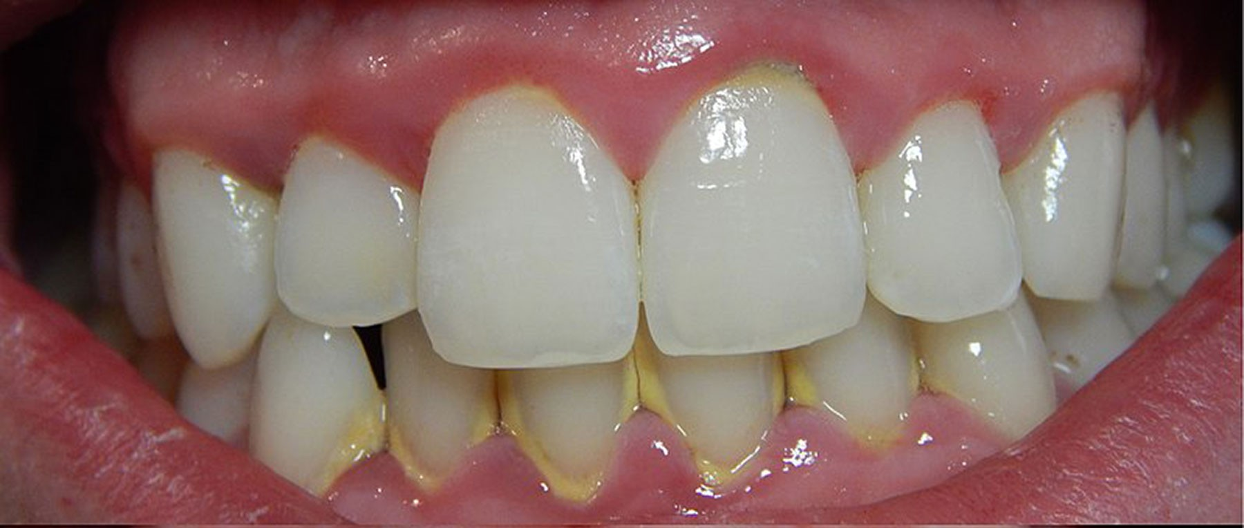 800px-Gingivitis-before-and-after-3